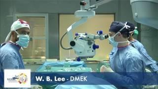 Lee DMEK - LIVE SURGERY SICSSO 2017