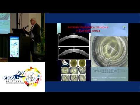 SICSSO 2017 - ENG - L. Mastropasqua (Chieti) - New options in FSL-assisted stromal transplantation