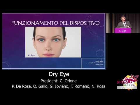SICSSO 2018 - ITA - L. Vigo (Milan) - Intense regulated pulsed light in dry eye patients with MGD an