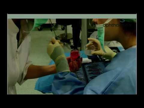 SICSSO 2016 - ITA - M. Balidis (Greece) - Intrastromal keratoplasty for pellucid marginal degenerati