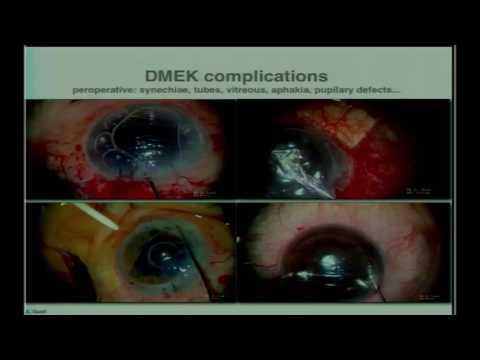 SICSSO 2016 - ITA - J. L. Guell (Spain) - DMEK tips and tricks