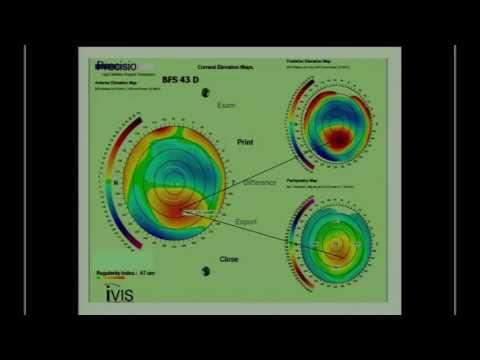 SICSSO 2016 - ITA - A. Mularoni (San Marino) - Corneal topography in keratoconus: case evaluation an