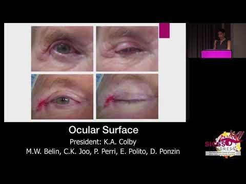 SICSSO 2018 - ITA - W. W. Lee (USA) - Eyelids surgical repair for ocular surface diseases