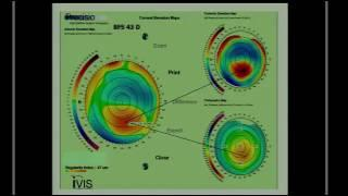 SICSSO 2016 - ENG - A. Mularoni (San Marino) - Corneal topography in keratoconus: case evaluation an