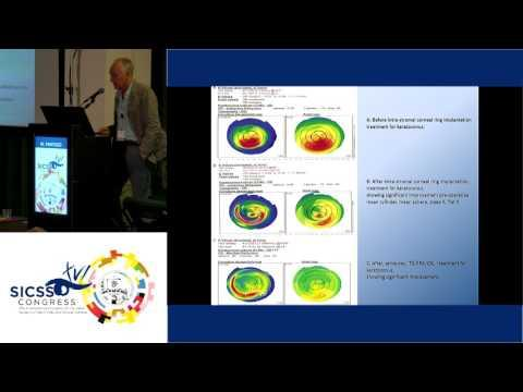 SICSSO 2017 - ENG - M. Fantozzi (Pescia, PT) - Intracorneal rings combined with aberrometric PRK and