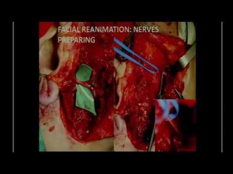"""SICSSO 2016 - ENG - C. Menicacci (Siena) - New """"four hands"""" corneal neurotization technique in the t"""