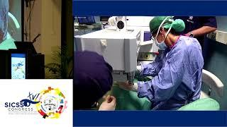 LIVE SURGERY - COMBINED CTEN and CXL for keratoconus - SICSSO 2017 - GIO 22.06 - LIVE SURGERY F CIFA