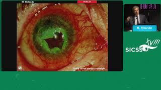 SICSSO 2019 - ITA - M. Rolando (Genoa) - Neurotrophic ulcer: diagnosis and treatment
