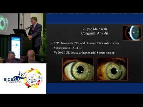 SICSSO 2017 - ENG - E. J. Holland (USA) - Surgical Techniques for the Ocular Surface Transplantation