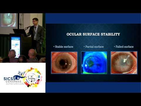SICSSO 2017 - ITA - A. Y. Cheung (USA) - Postoperative Management of Ocular Surface Transplantation