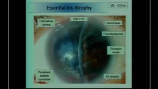 SICSSO 2016 - ENG - J.S. Mehta (Singapore) - EK in iridocorneal endothelial syndrome