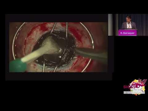 SICSSO 2018 - ENG - R. Barraquer (Spain) - Case presentation