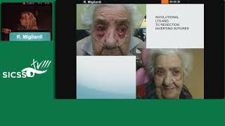SICSSO 2019 - ITA - R. Migliardi (Turin) - Common Eyelid Malpositions:  Ectropion and Entropion