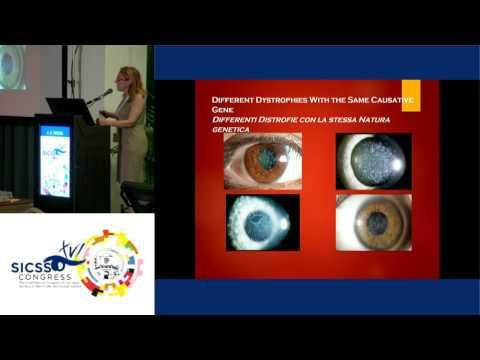 SICSSO 2017 - ENG - J. S. Weiss (USA) - Clinical diagnosis of corneal dystrophies