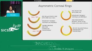 SICSSO 2019 - ENG - T. N. Castro (Brazil) - Femtosecond Laser - assisted intrastromal corneal segmen