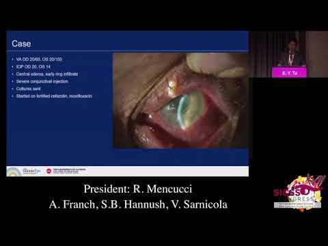 SICSSO 2018 - ITA - E. Y. Tu (USA) - Tips to clinically identify the etiology of microbial keratitis
