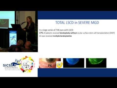 SICSSO 2017 - ITA - E. Sarnicola (Siena) - Medical Management of Severe Ocular Surface Diseases