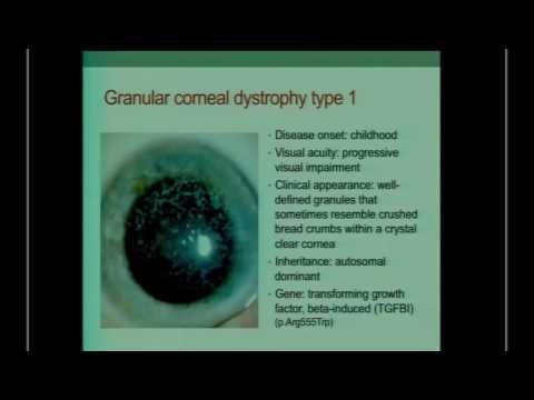 SICSSO 2016 - ITA - F. Simonelli (Napoli) - Clinical implications of corneal genetic diseases