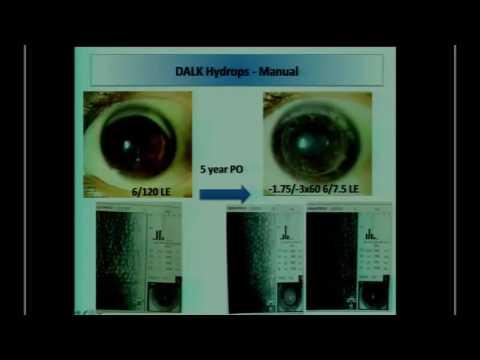 SICSSO 2016 - ITA - J. S. Mehta (Singapore)- DALK for hydrops in keratoconus