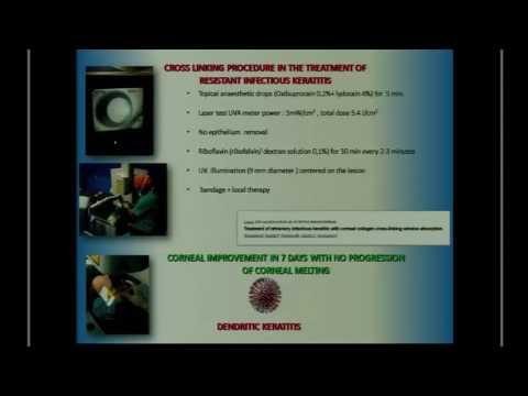 SICSSO 2016 - ENG - M. Pulvirenti (Palermo) - Herpetic keratitis after CXL in corneal abscess refrac
