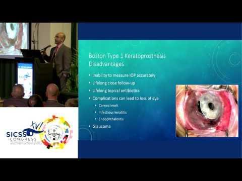 SICSSO 2017 - ITA - M. Darvish-Zargar (Canada) - Keratoprosthesis vs. Ocular Surface Transplantation