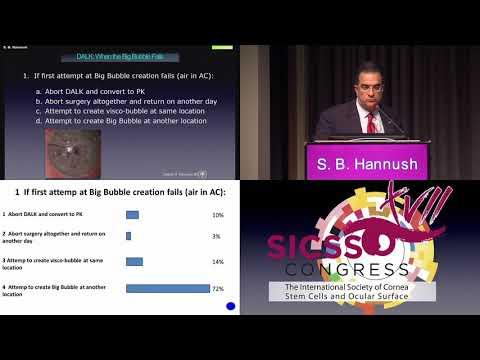 SICSSO 2018 - ENG - S. B. Hannush (USA) - Case presentation
