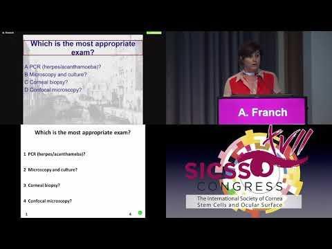 SICSSO 2018 - ITA - A. Franch (Venice) - Case presentation
