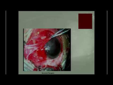 SICSSO 2016 - ITA - J. Suvira (India) - Pterygium surgery: the wings of change