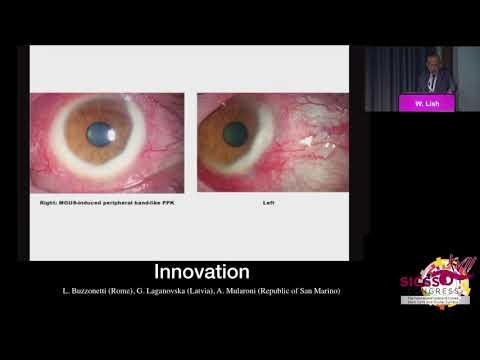 SICSSO 2018 - ENG - W. Lisch (Germany) - The corneal dystrophy Importer-phenotypic variation of the