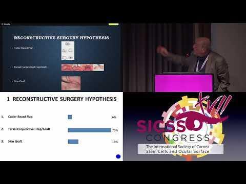 SICSSO 2018 - ITA - F. Trivella (Lucca) - Case presentation