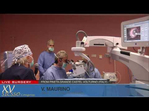 SICSSO 2016 - LIVE SURGERY - V .Maurino (UK/Castel Volturno) - DMEK (live donor stripping)
