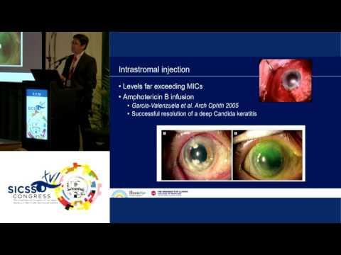 SICSSO 2017 - ITA - E. Y. Tu (USA) - A Treatment Paradigm for Fungal Keratitis