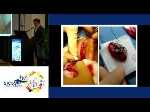 SICSSO 2017 - ITA - N. Santoro (Firenze) - Malignant melanoma of the eyelid and conjunctiva