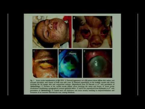 SICSSO 2016 - ENG - R. Fogla (India) - Steven Johnson Syndrome