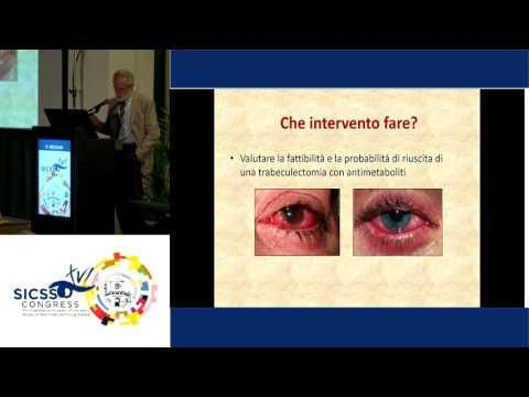 SICSSO 2017 - ITA - P. Brusini (Udine) - Which is the best surgical procedure to treat Glaucoma in O