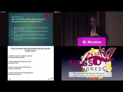 SICSSO 2018 - ITA - M. Muraine (France) - Case presentation