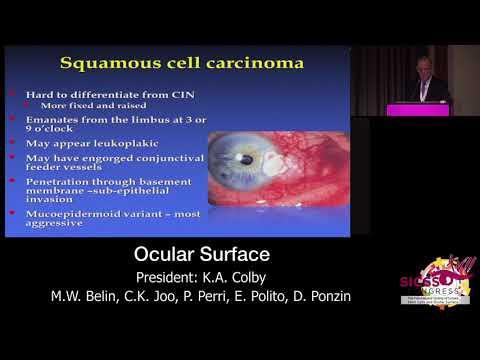 SICSSO 2018 - ITA - J. B. Rubenstein (USA) - Ocular surface tumors: a practical prospective