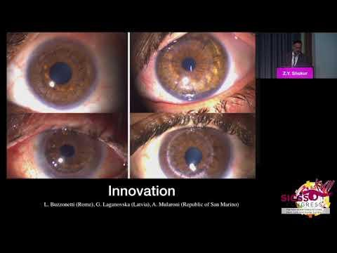 SICSSO 2018 - ENG - Z. Y. Shukur (Iraq) - A step toward long lasting keratoplasty in medically chall