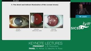 SICSSO 2019 - ENG - W. Lisch (Germany) -Keynote Lecture - Decisive diagnosis of certain corneal dyst