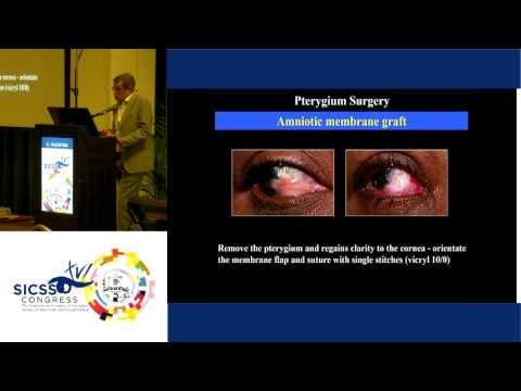 SICSSO 2017- ITA - G. Valentini (Pistoia) - Pterygium surgery: personal experience