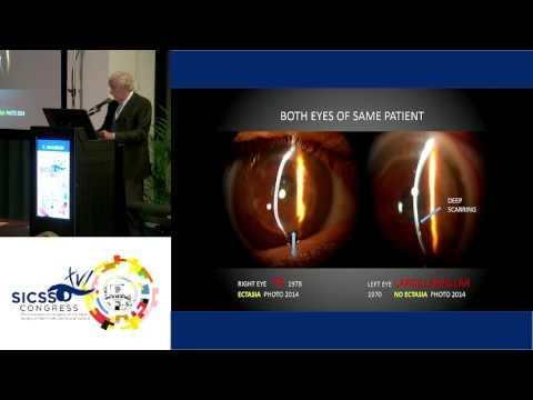 SICSSO 2017 - ENG - E. Malbran (Argentina) - Reflections upon Corneal Grafts sizes in Keratoconus Ca