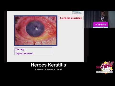SICSSO 2018 - ITA - V. Sarnicola (Grosseto) - HSV keratitis: a practical prospective