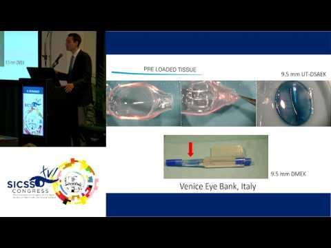 SICSSO 2017 - ENG - V. Romano (UK) - Strategies to improve graft survival