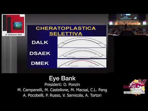 SICSSO 2018 - ENG - A. Tortori (Naples) - DRG e Cheratoplastica
