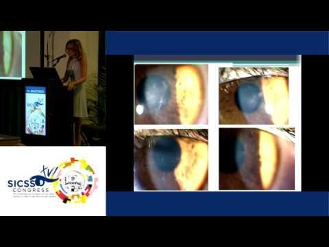 SICSSO 2017 - ENG - Al. Balestrazzi (Roma) - Contact lens-related microbial keratitis: clinical case