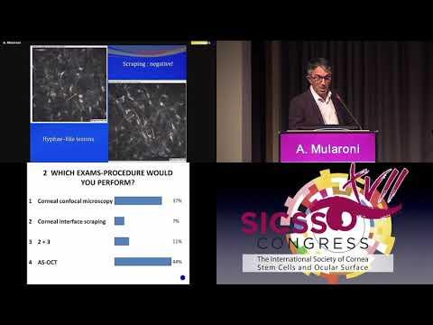 SICSSO 2018 - ITA - A. Mularoni (Republic of San Marino) - Case presentation
