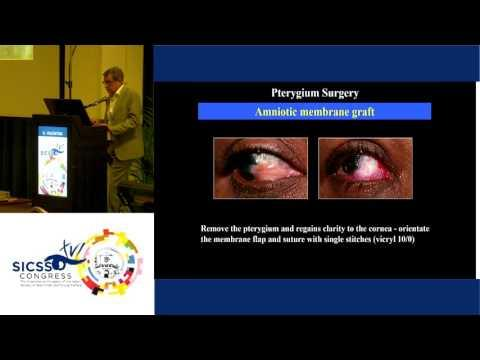 SICSSO 2017- ENG - G. Valentini (Pistoia) - Pterygium surgery: personal experience