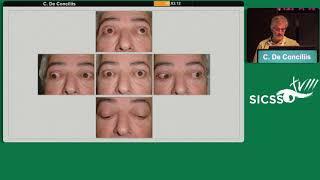 SICSSO 2019 - ITA - C. De Conciliis (Milan) - Eyelid Retraction and Exposure Secondary to Exophthalm