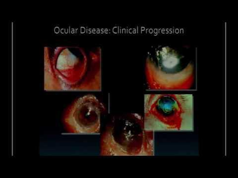 Ita - W. B.  Lee (USA) - Ocular pemphigoid