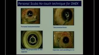 SICSSO 2016 - ENG - L.Mosca (Roma) - Functional results of a personal technique for DMEK